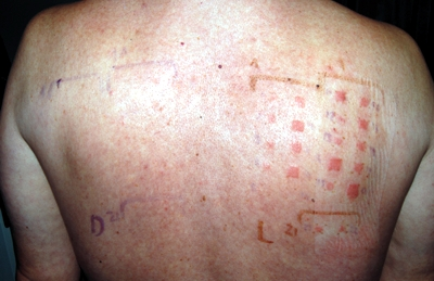 terbinafine photoallergy confirmed by photo patch test